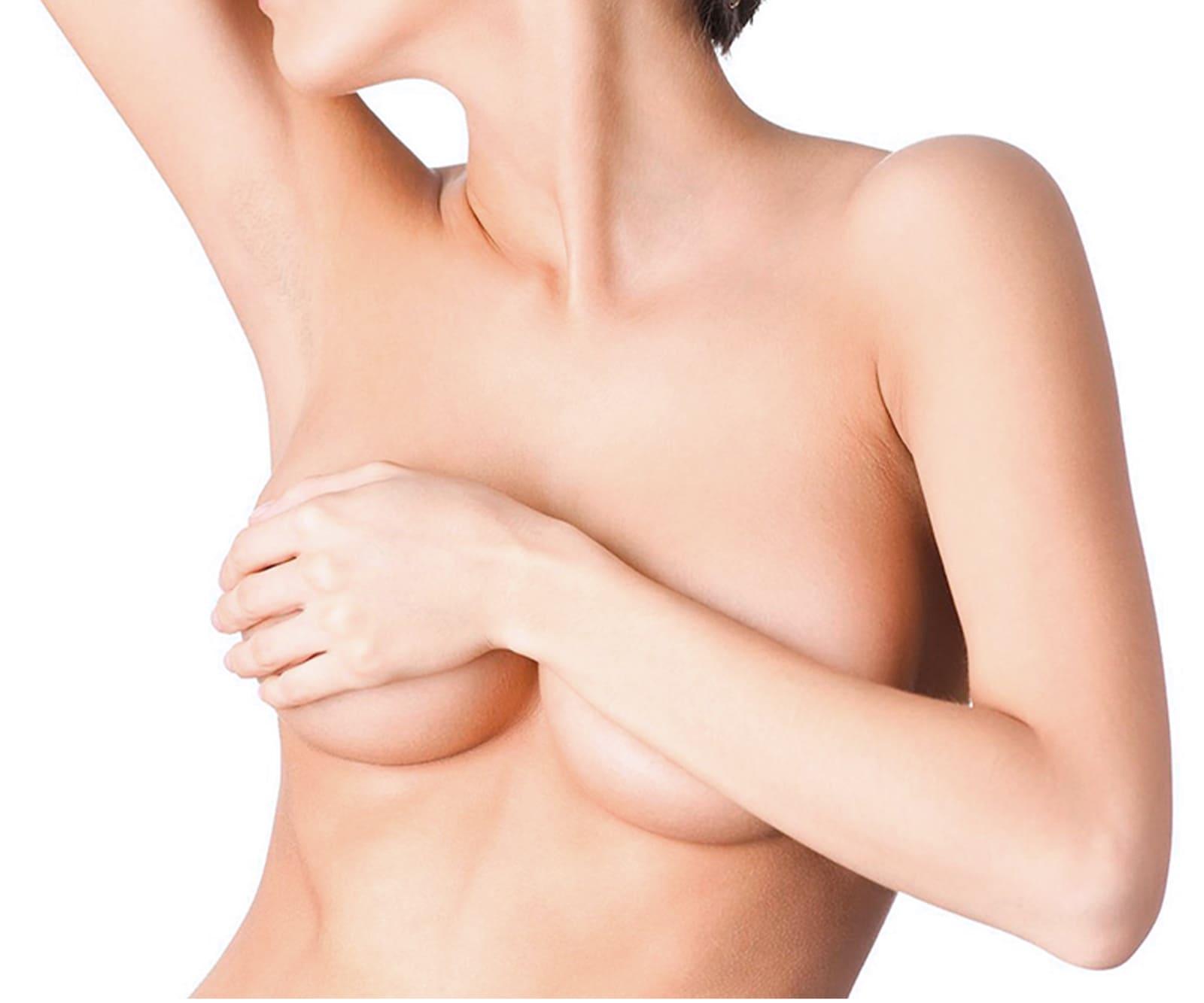 (RU) Импланты от MENTOR® − превосходный результат и безопасность